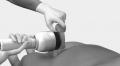 Импульсная магнитотерапия при нарушения половой жизни