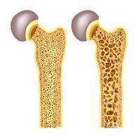 Артрит и Остеопороз